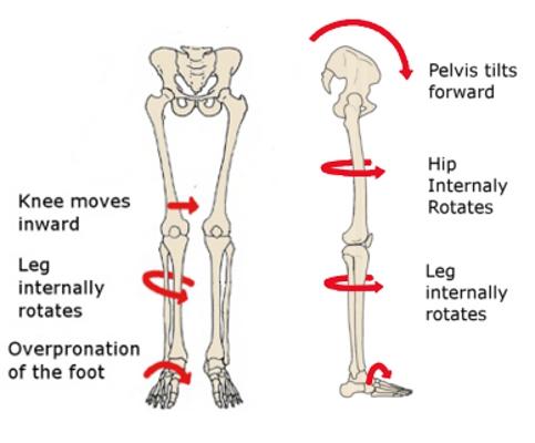 skeletoneffects.jpg