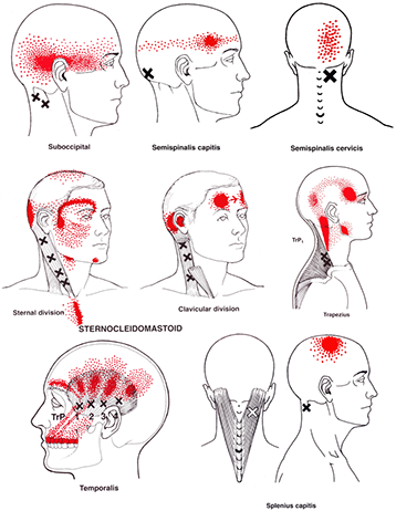 headache tp-s